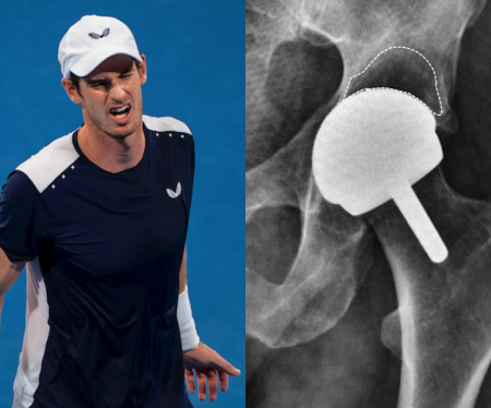 Andy Murray documentary: What we can learn about major orthopaedic surgery from Resurfacing